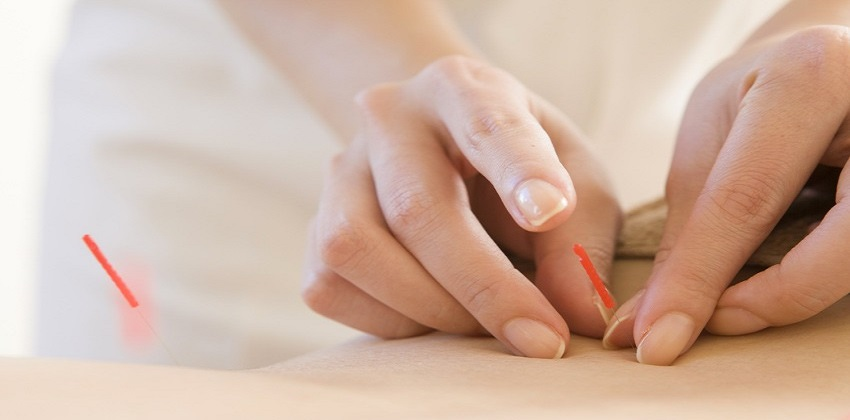 Acupunctura Pentru Pierderea In Greutate Eficienta