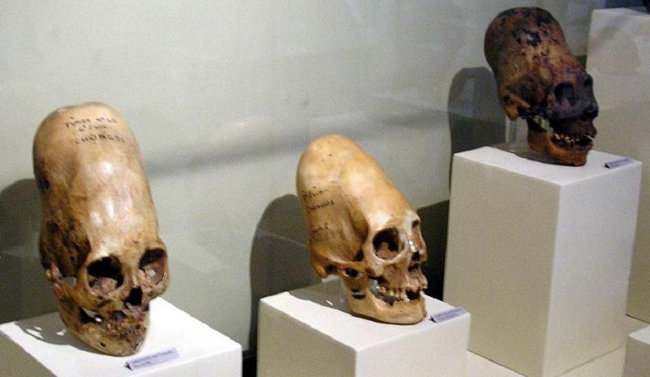 Cinci Cranii Extraterestre Pe Care Stiinta Nu Le Poate Explica