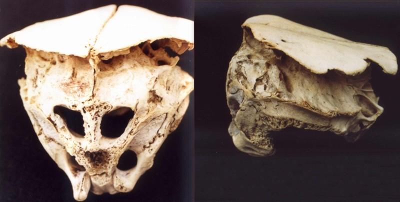Craniul din Muntii Rodopi